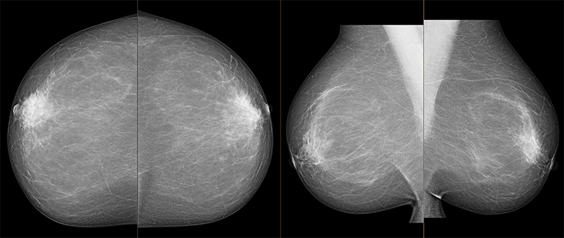 Mammogramm
